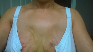 Now that the swelling is going down, I can see the places on my upper chest where I'll need to fill it in some. It was tough to see that at first, but I understand why it looks like that. Knowing that later I can fix it helps tremendously, even if the fix is an invasive, painful procedure.