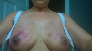 Day 4 after surgery and the bruising looks much better.